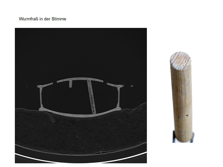 Computertomografie (CT)