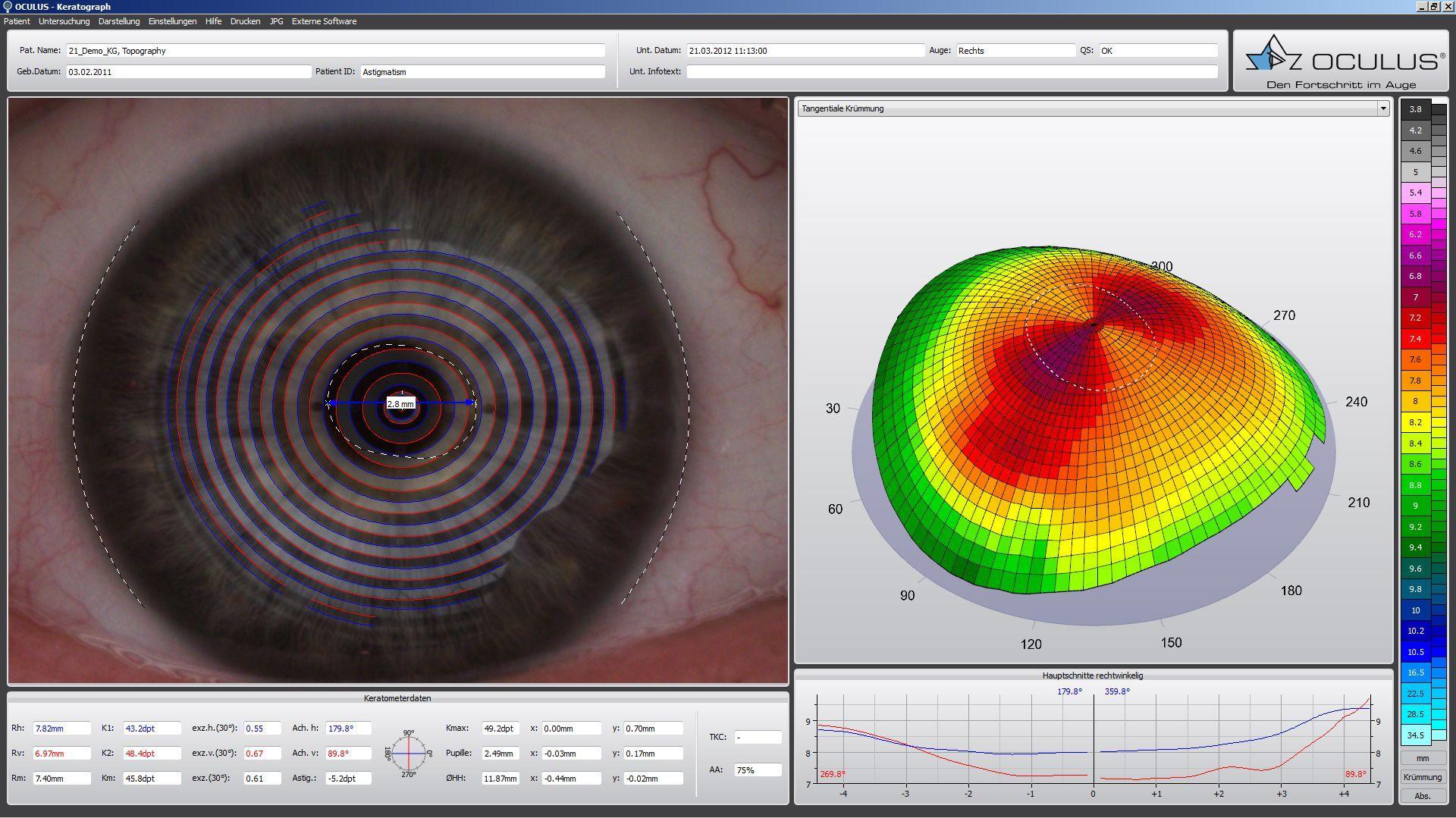Kontaktlinsen | Meier Optik Ingolstadt